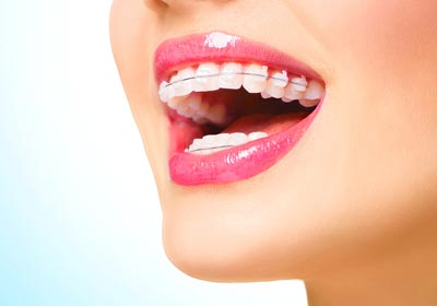 advanced braces in michigan city in